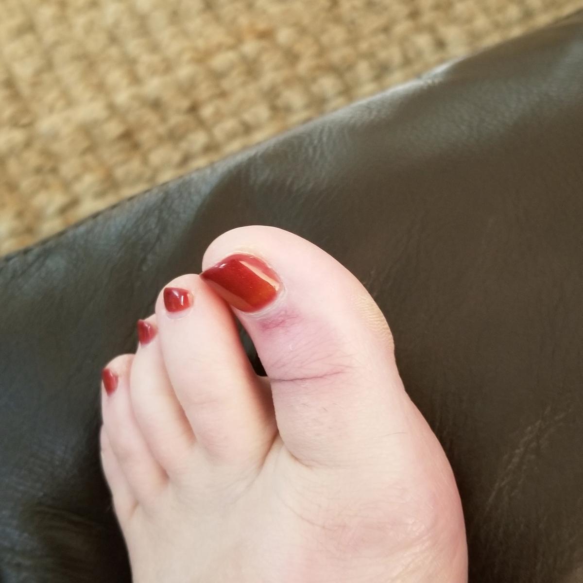 Wicked Toe Injury